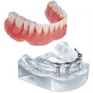Model-Bar  OverDenture W/4 Implants