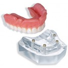 4 Implant Locator Abutment Upper Overdenture Model