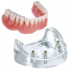 4 Implant Locator Abutment Lower Overdenture Model